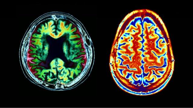 Cérebro Alzheimer solanezumab