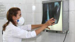 Tuberculose exame (Foto: Agecom-BA/Divulgação)