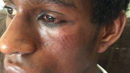 Diogo Cintra foi espancado por bandidos que tentaram assaltá-lo (Foto: Facebook/Reprodução)