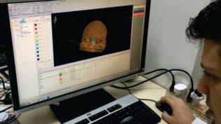 Estudo brasileiro dá aval à radiocirurgia em pacientes mais frágeis