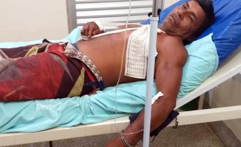 Indígena Arlindo Nogueira levou dois tiros e foi preso pela polícia (Foto: Divulgação)