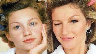 Gisele Bündchen diz que nariz grande a tornou uma modelo melhor
