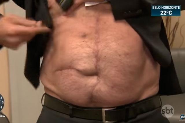 Presidente mostra as cicatrizes da facada, da cirurgia e da bolsa de colostomia (Foto: Reprodução)