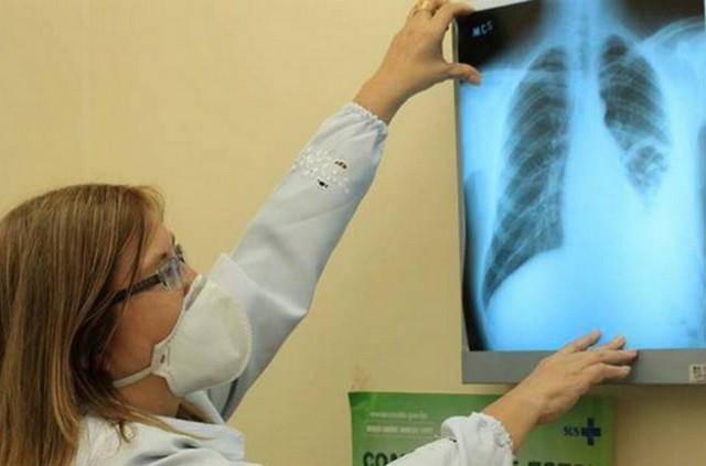 Perfil de quem tem tuberculose é de pessoas de classe baixa que acumulam vulnerabilidades sociais (Foto: Fiocruz/Divulgação)