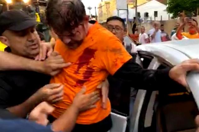 Senador Cid Gomes levou dois tiros ao dirigir uma retroescavadeira contra policiais (Foto: Facebook/Reprodução)
