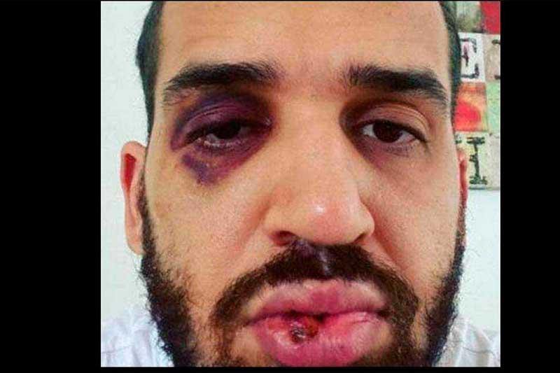 Médico José Eduardo Panini postou foto do rosto machucado (Foto: Instagram/Reprodução)